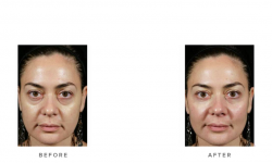 dermal fillers before and after - thumb image 002 - front
