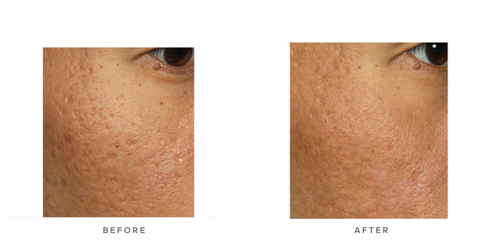 acne scarring laser treatment before and after - patient 001 - infinity clinic