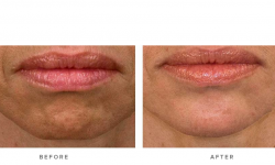 Anti-wrinkle+Injections_v5+-+Chin_1
