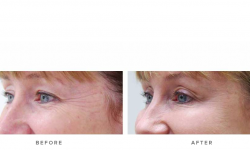 Anti-wrinkle+Injections_v5+-+Crows_1
