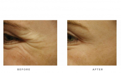 Anti-wrinkle+Injections_v5+-+Crows_2