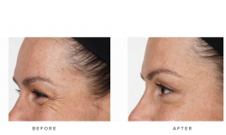 Anti-wrinkle+Injections_v5+-+Crows_3