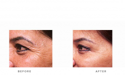Anti-wrinkle+Injections_v5+-+Crows_6