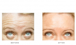 Anti-wrinkle+Injections_v5+-+Forehead_2