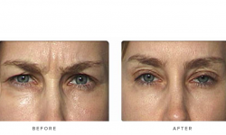Anti-wrinkle+Injections_v5+-+Glabella_1