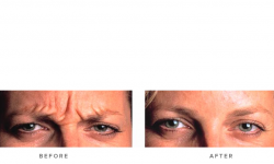 Anti-wrinkle+Injections_v5+-+Glabella_2
