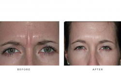 Anti-wrinkle+Injections_v5+-+Glabella_3