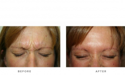 Anti-wrinkle+Injections_v5+-+Glabella_4