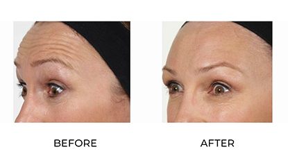 anti wrinkle injections - before & afters 001 - small image