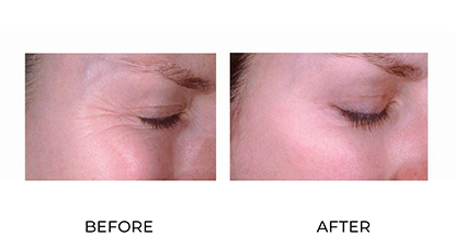 wrinkle relaxers 010 - before and after