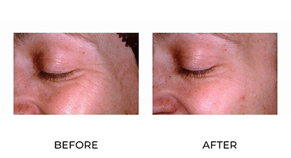 anti-wrinkle injections treatment before and after - image 011 - side view