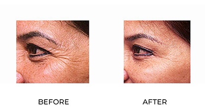anti wrinkle injections 12 - before & after - side view