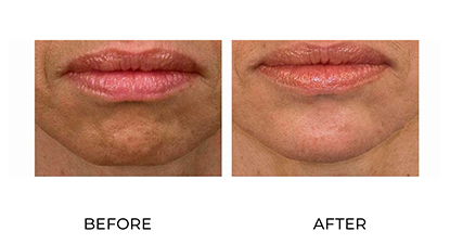 anti wrinkle injections 013 - before and after - chin - small image