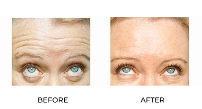 anti wrinkle injections before and after - image 002 - small image