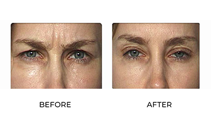 anti wrinkle injections before and after - image 003 - small image