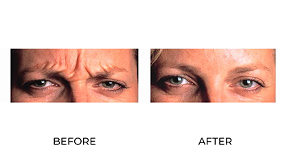 anti_wrinkle injections - before and after - image 004 - small