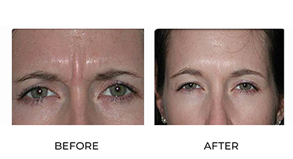 anti-wrinkle injections before and after - image 005 - front