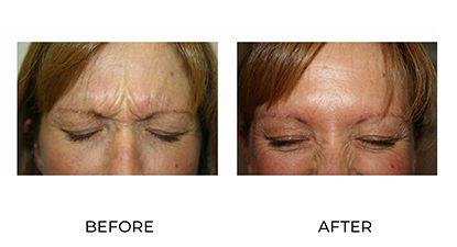 wrinkle relaxers - before & after - image 006