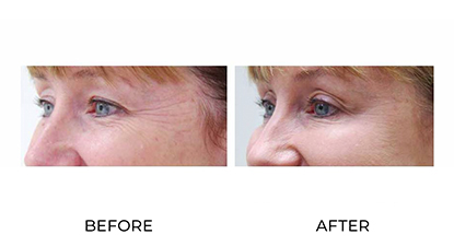 anti wrinkle injections 007 - before & after - side view