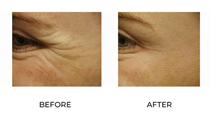 wrinkle relaxers before and after 008 - side view