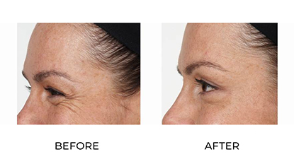 anti wrinkle injections - before & after - image 009