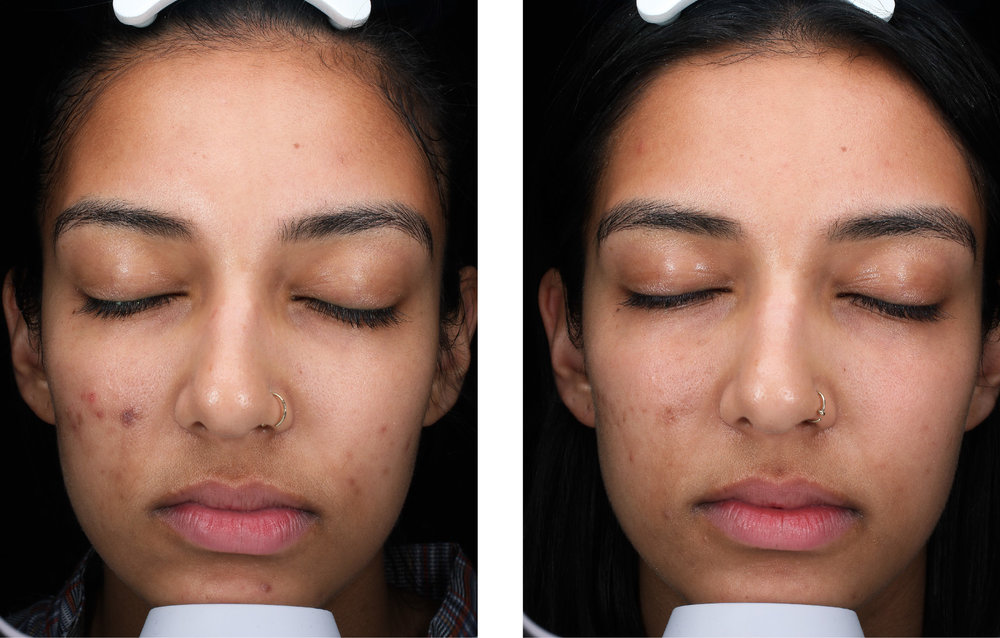 china doll facial - before and after - image 001 - front