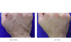 dermal fillers before and after - hands 001
