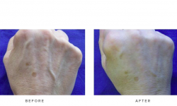dermal fillers before and after - hands 003