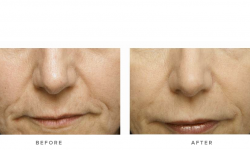 dermal fillers & nasolabial folds - before and after gallery 001 - front