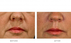 dermal fillers & nasolabial folds - before and after gallery 002 - front