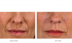 dermal fillers & nasolabial folds - before and after gallery 003