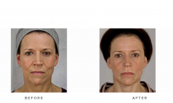 dermal fillers, nasolabial folds and accordion lines - before and after 002