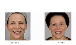 dermal fillers, nasolabial folds and accordion lines - before and after 001