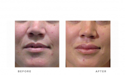 dermal fillers and nasolabial folds and lip fillers - before and after gallery
