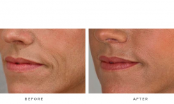 before & afters - dermal fillers and accordion lines 001