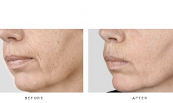 before & afters - dermal fillers and accordion lines 002
