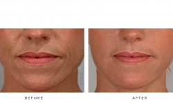 before & afters - dermal fillers and accordion lines 003