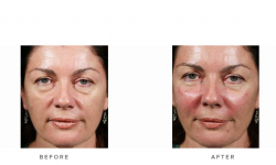dermal fillers and cheek volumisation - before and after - image 001