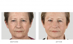 dermal fillers and cheek volumisation - before and after - patient 002