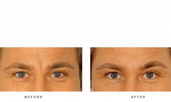 before and after gallery - dermal fillers & glabella