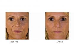 dermal fillers, glabella, cheek volumisation & nasolabial folds - before and after