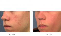 Fraxel+–+Acne+scars_1