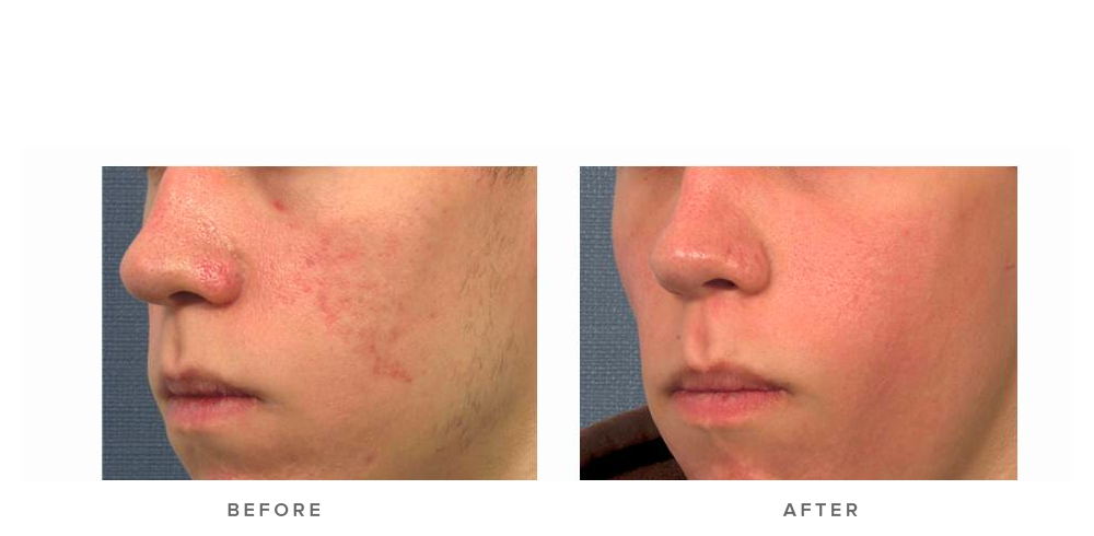 fraxel laser for acne scars - before and after - patient 001 - 45 degree view
