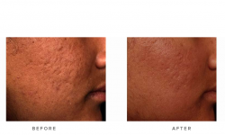 fraxel laser for acne scars - before and after - patient 002 - side view
