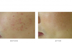 fraxel laser acne scarring - before and after - patient 003 - side view