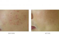 Fraxel+–+Acne+scars_3
