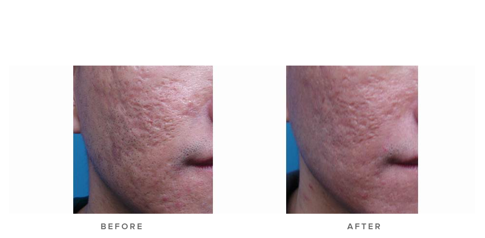 fraxel laser before and after (acne scarring) - before and after 004 - front view
