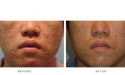 fraxel laser before and after - image 005 - front view - laser treatment for acne scarring