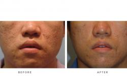 Fraxel+–+Acne+scars_5