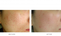 fraxel laser for acne treatment - before and after - patient 006 - side view